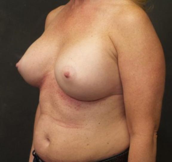 Case #4769 – Breast Augmentation
