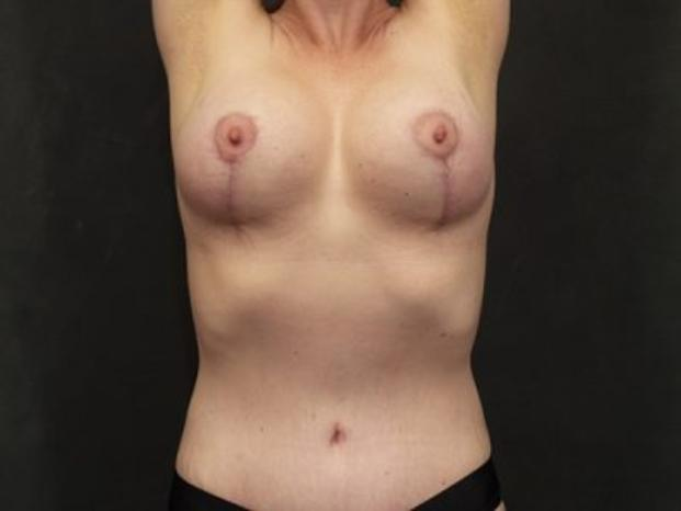 Case #4841 – Breast Lift