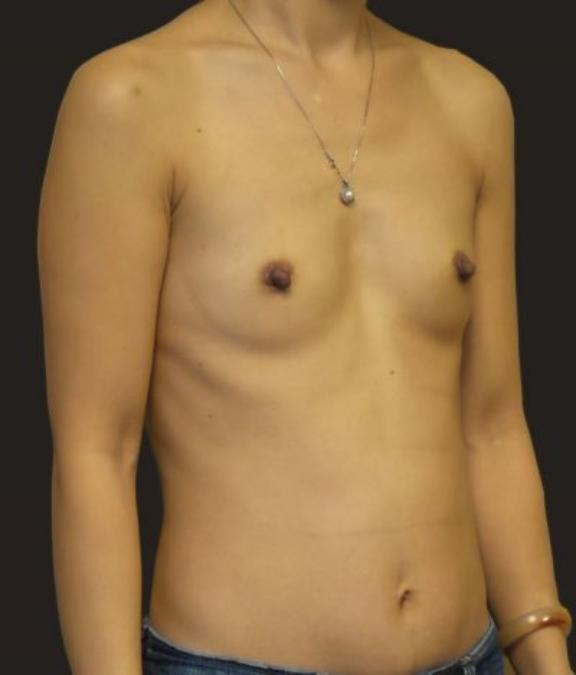 Case #4877 – Breast Augmentation