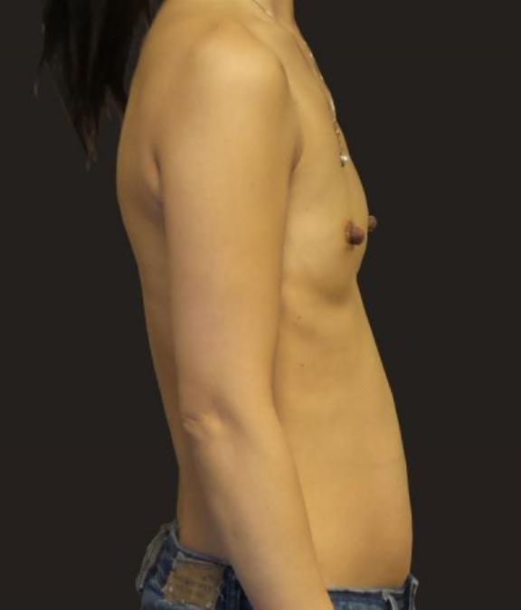 Case #4877 – Breast Augmentation
