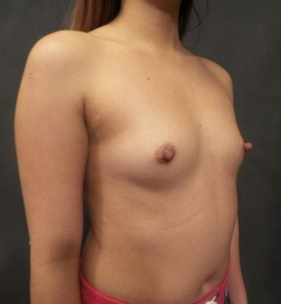 Case #4899 – Breast Augmentation