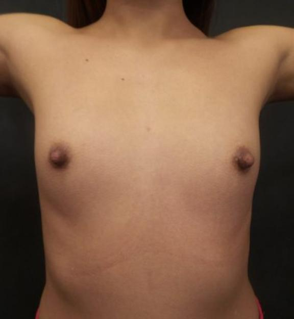 Case #4899 – Breast Augmentation