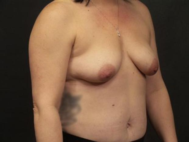 Case #4941 – Breast Lift