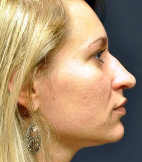 Case #568 – Rhinoplasty