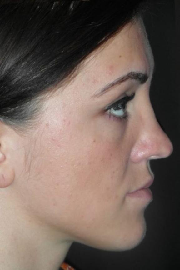 Case #574 – Rhinoplasty