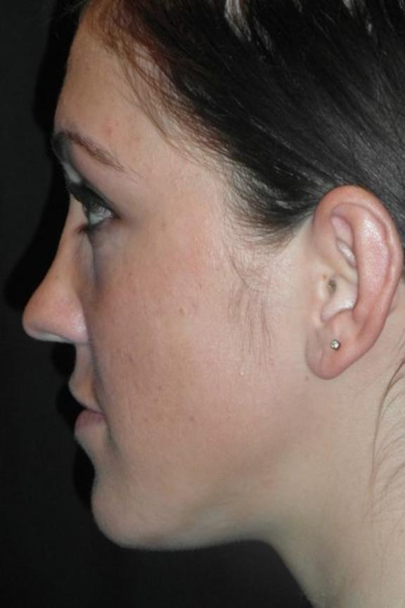 Case #574 – Rhinoplasty