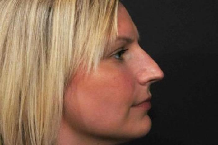 Case #586 – Rhinoplasty