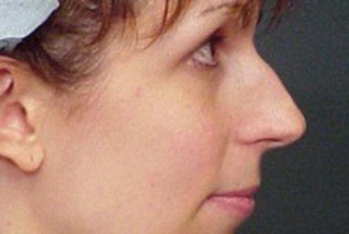 Case #604 – Rhinoplasty