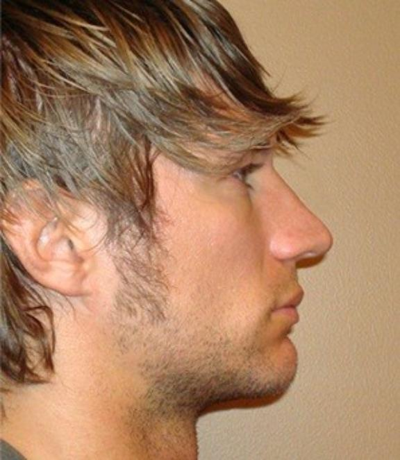 Case #608 – Rhinoplasty
