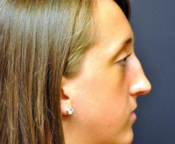 Case #612 – Rhinoplasty