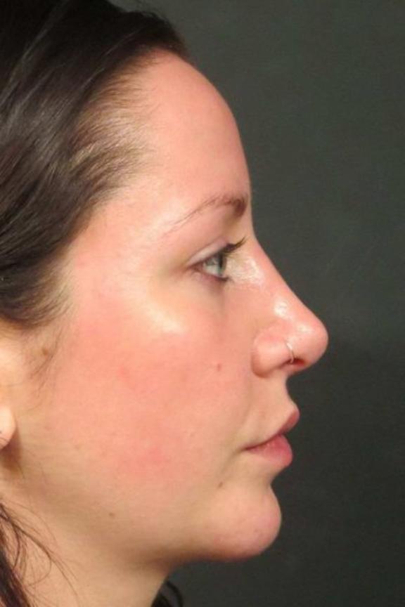 Case #618 – Rhinoplasty