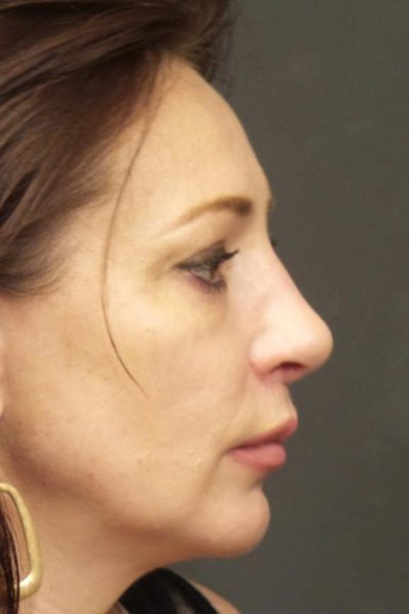 Case #626 – Rhinoplasty