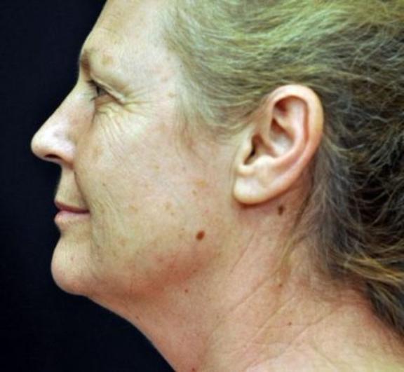 Case #638 – Laser Skin Resurfacing