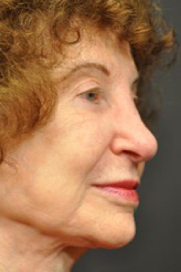 Case #664 – Eyelid Surgery