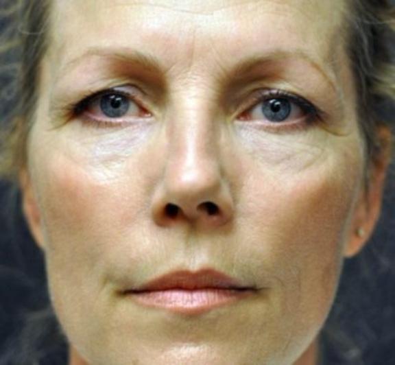 Case #676 – Eyelid Surgery