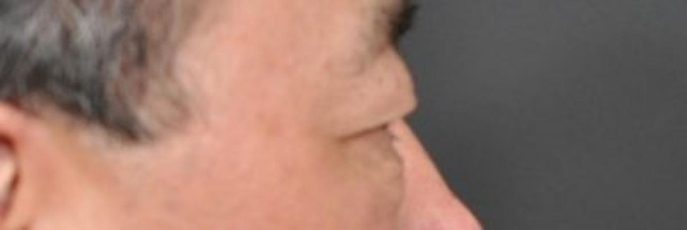 Case #732 – Eyelid Surgery