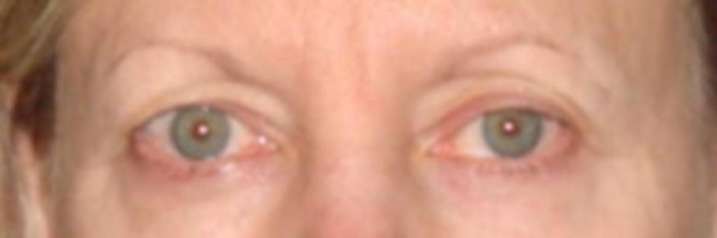 Case #740 – Eyelid Surgery