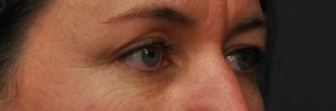 Case #758 – Eyelid Surgery