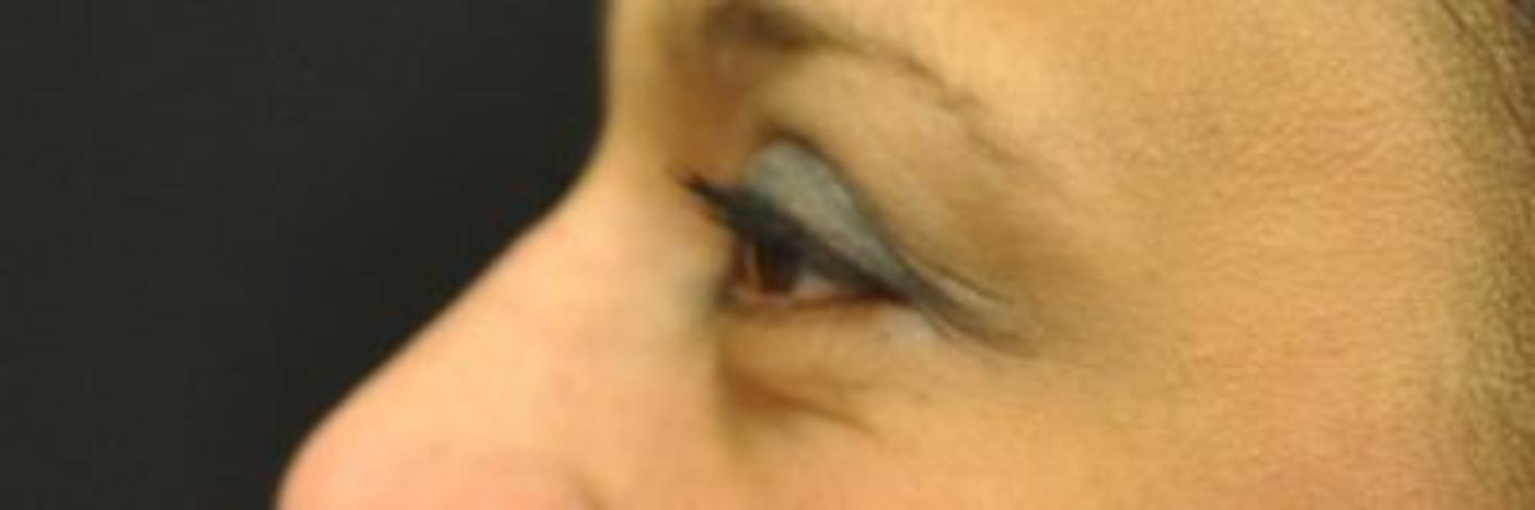 Case #770 – Eyelid Surgery