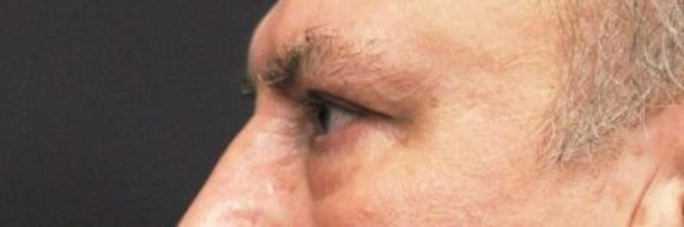 Case #778 – Eyelid Surgery