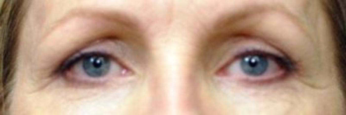 Case #790 – Eyelid Surgery
