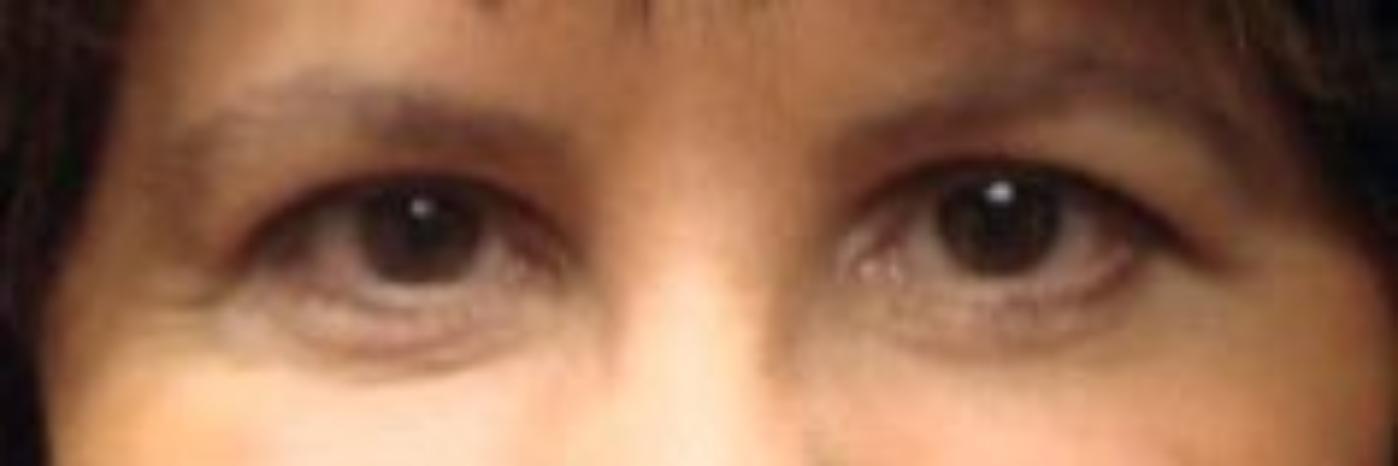 Case #798 – Eyelid Surgery