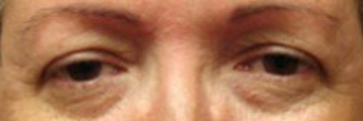 Case #802 – Eyelid Surgery