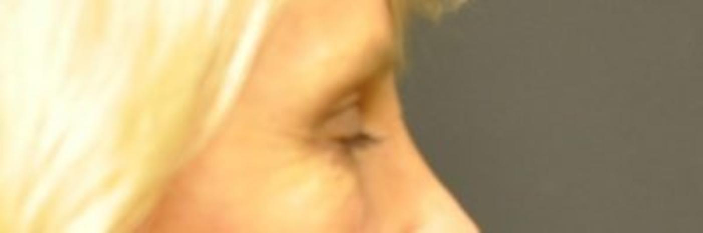 Case #806 – Eyelid Surgery