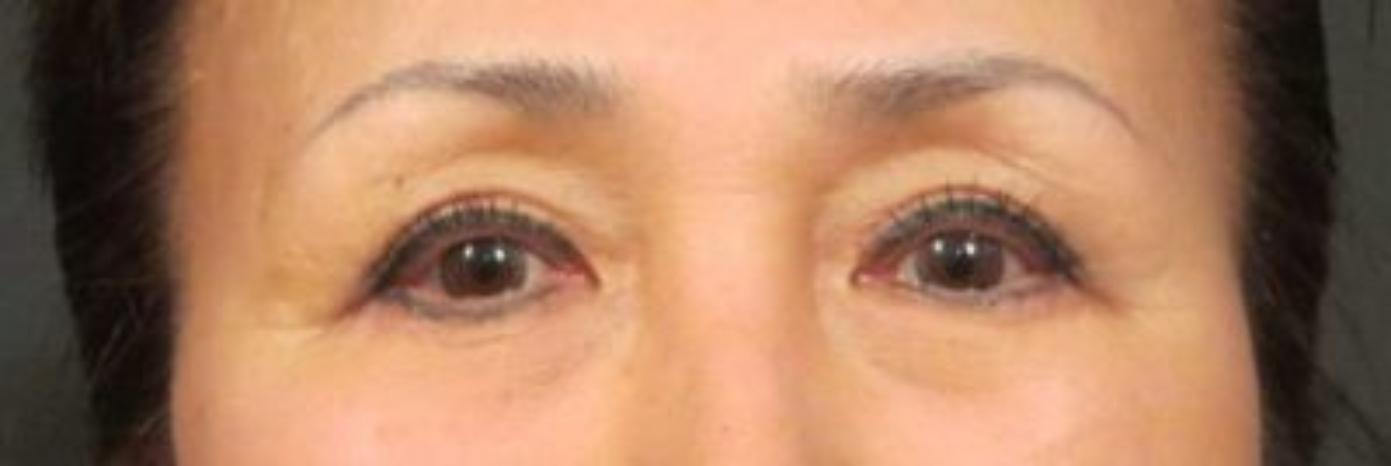 Case #818 – Eyelid Surgery