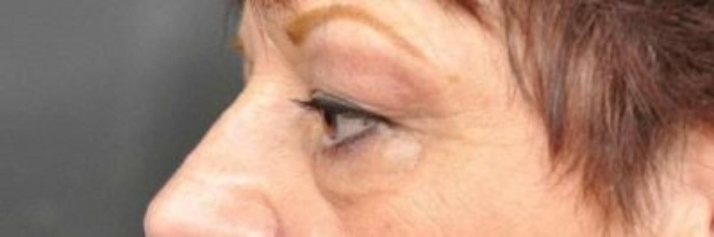 Case #830 – Eyelid Surgery