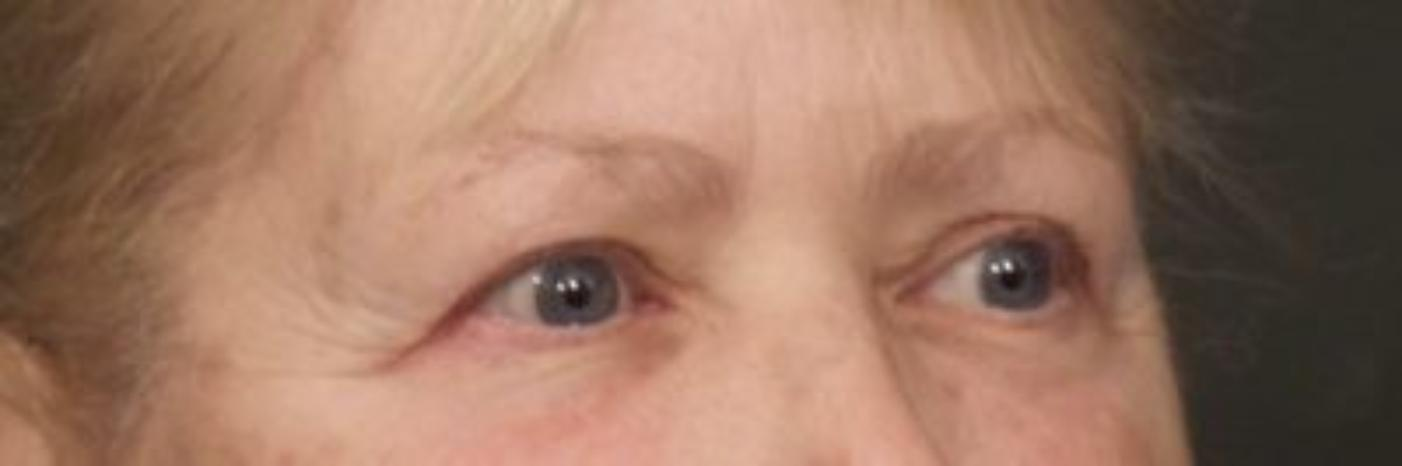 Case #842 – Eyelid Surgery