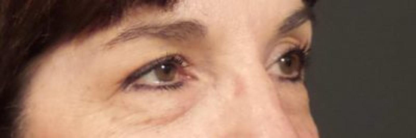 Case #854 – Eyelid Surgery