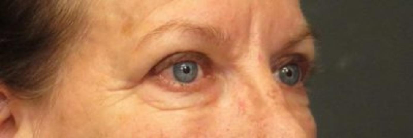 Case #866 – Eyelid Surgery