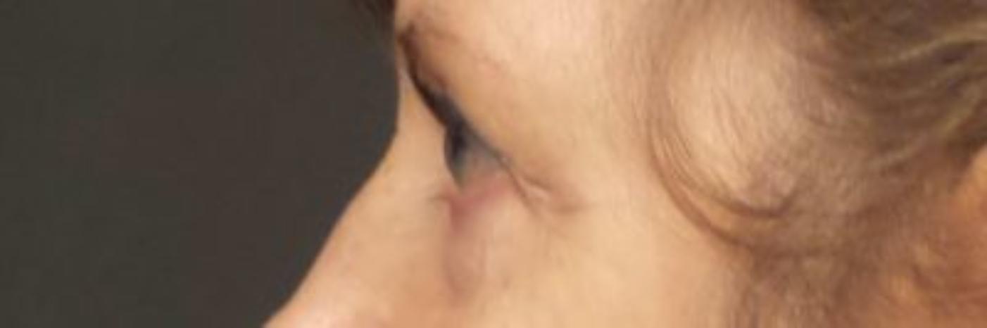 Case #878 – Eyelid Surgery