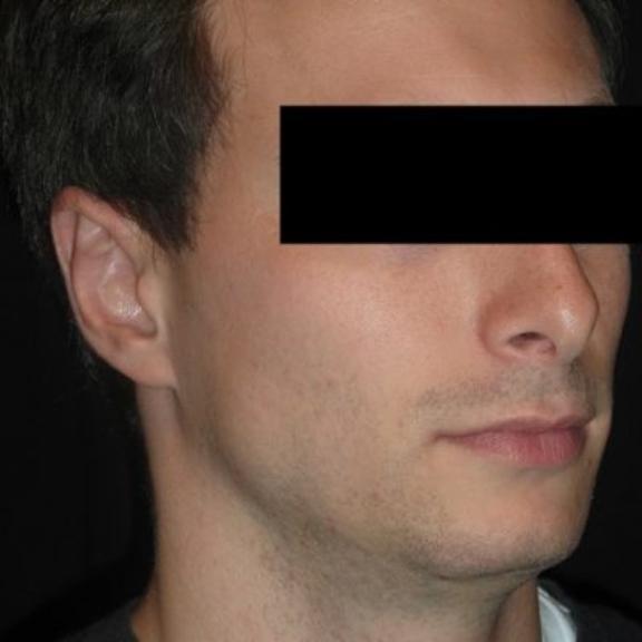 Case #894 – Ear Surgery