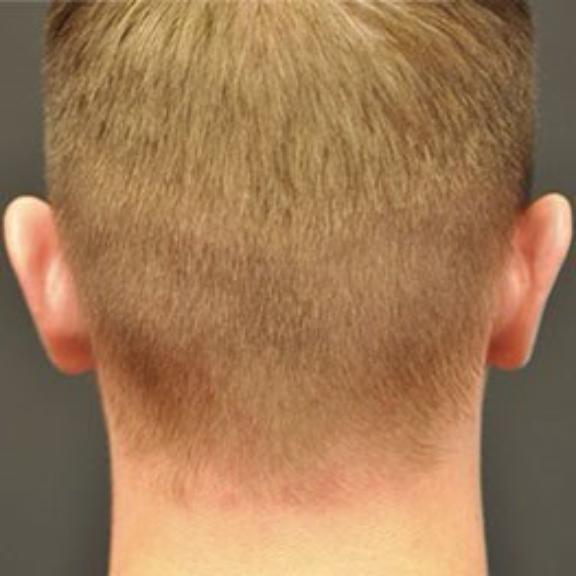 Case #904 – Ear Surgery