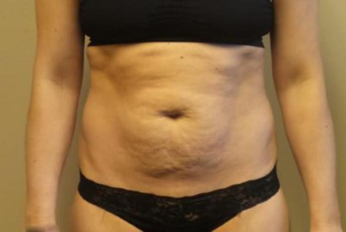 Case #90 – Ultrashape Fat Reduction
