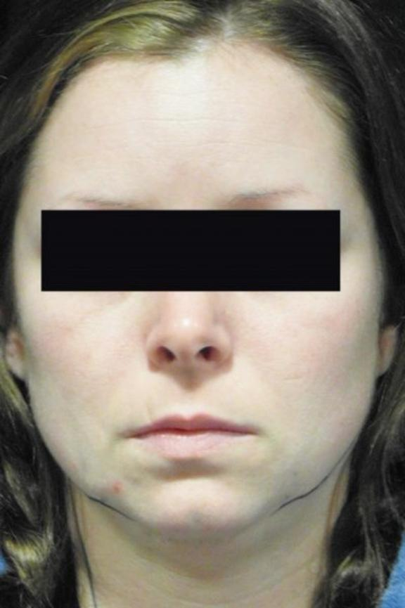 Case #920 – Chin Augmentation