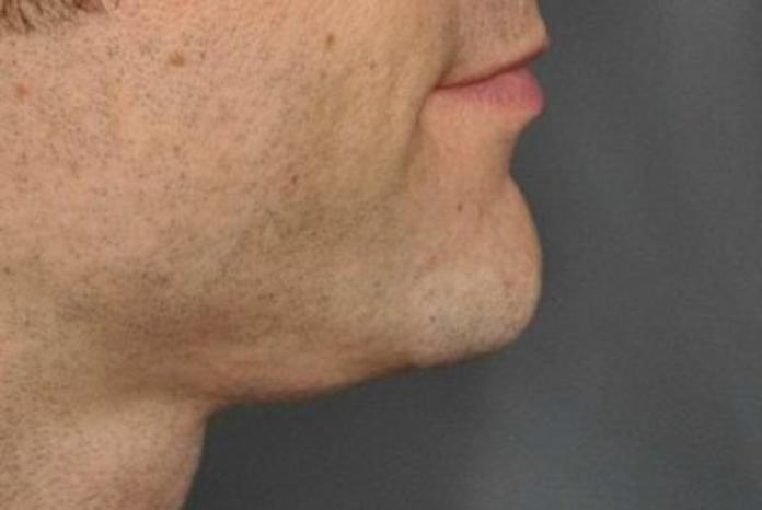 Case #928 – Chin Augmentation