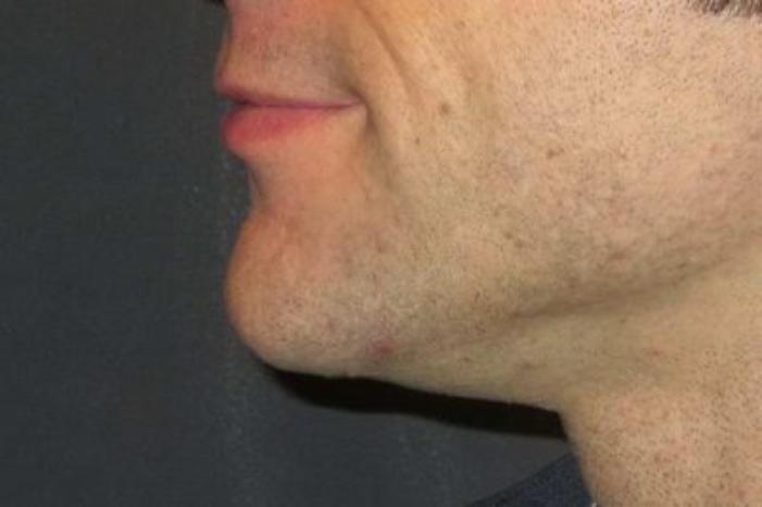 Case #928 – Chin Augmentation
