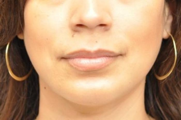 Case #942 – Chin Augmentation