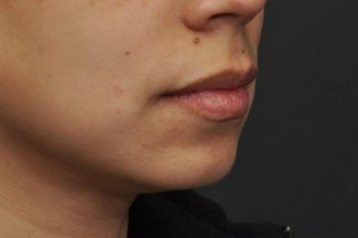 Case #942 – Chin Augmentation