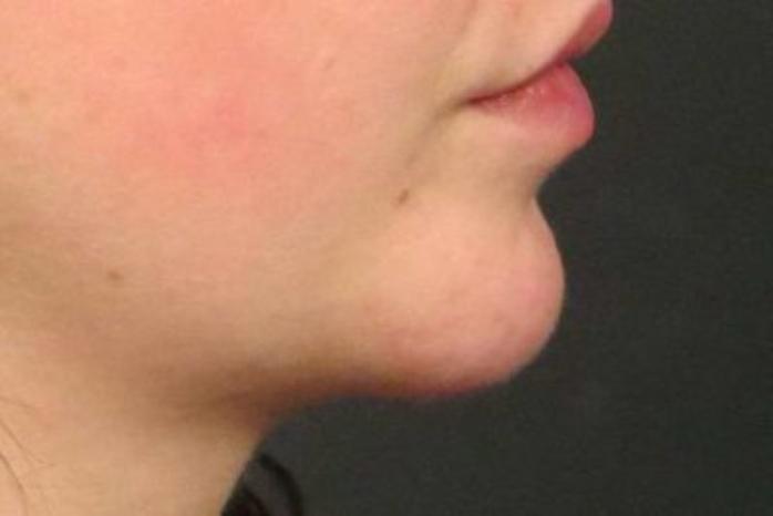 Case #954 – Chin Augmentation