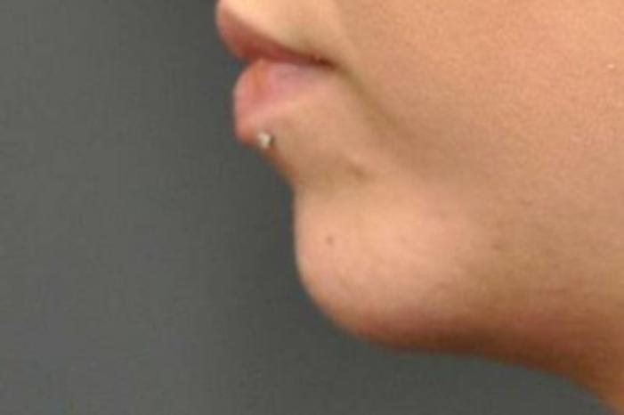 Case #954 – Chin Augmentation