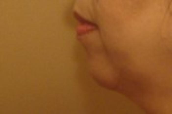 Case #978 – Chin Augmentation