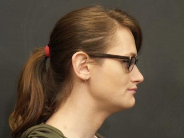 Case #995 – Facial Feminization