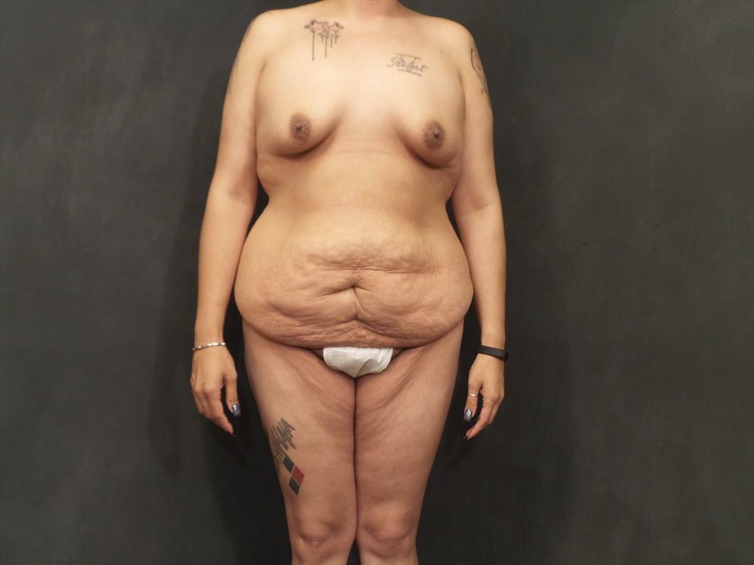 Case #4825 – Tummy Tuck