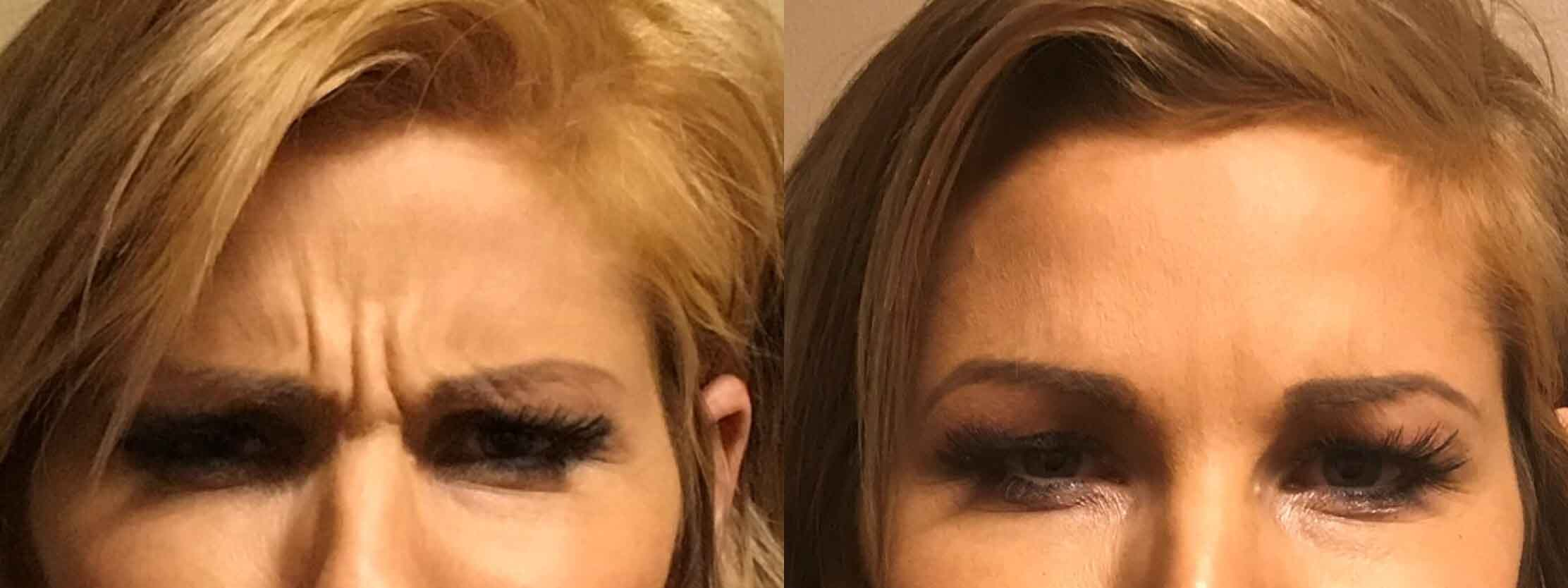 A before and After Comparison of a patient who received a botox treatment at seattle plastic surgery