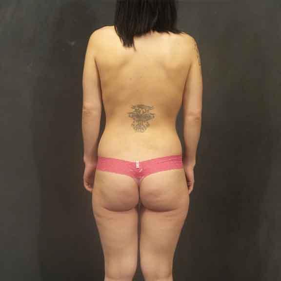 Case #4706 – Brazilian Butt Lift (BBL)