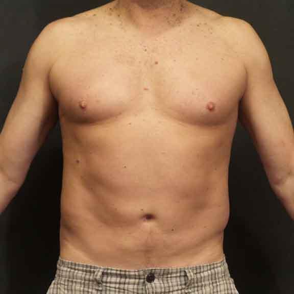 Case #4826 – Liposuction